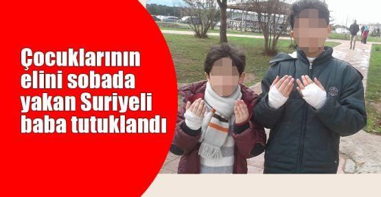 Çocuklarının elini sobada yakan Suriyeli baba tutuklandı