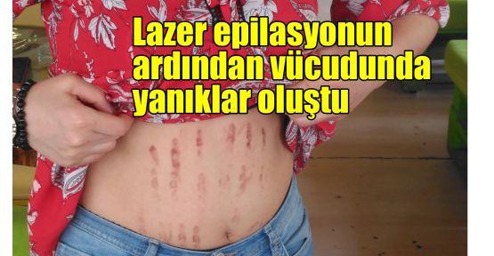 Lazer epilasyonun ardından vücudunda yanıklar oluştu