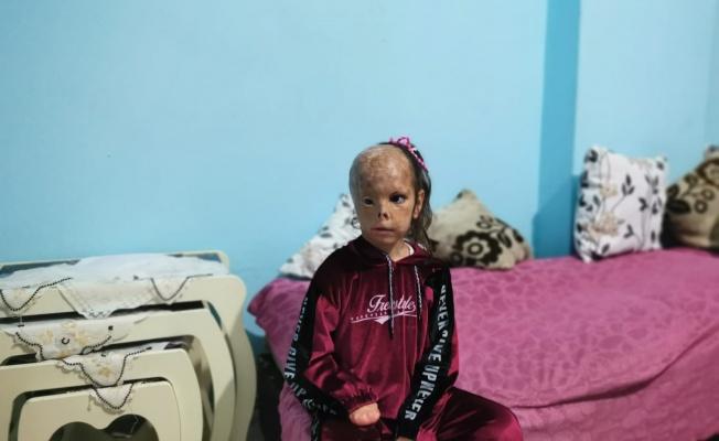 Bebekken yüzü yanan 5 yaşındaki Dilara'ya yardım eli uzandı
