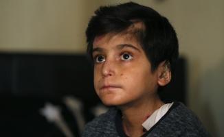 Dilovası'nda Kelebek hastası Hamza bedenine yüklenen ağır yükü taşımaya çalışıyor